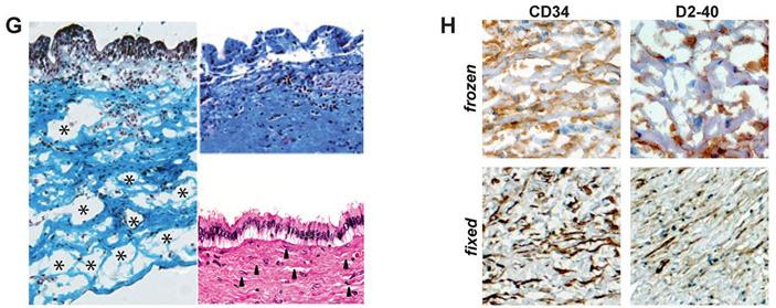 Рис. 2. Сравнение замороженных и фиксированных тканей желчных протоков