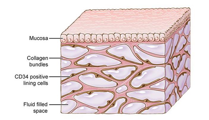 Рис. 4. Схематическое изображение открытой губчатой структуры