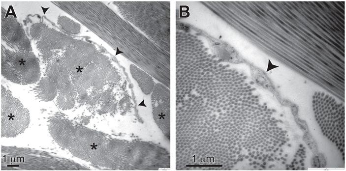 Рис. 5. Электронная микроскопия открытой губчатой структуры