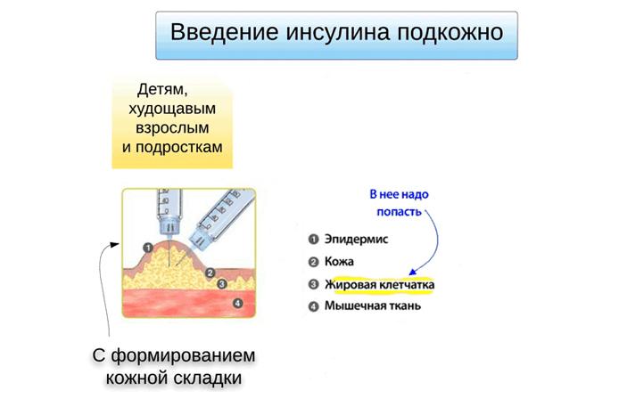 Рис. 3. Схема подкожного введения инсулина