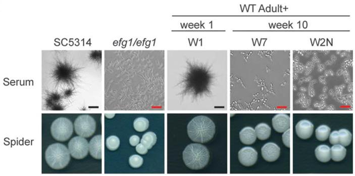 Колонии разных штаммов гриба Candida albicans